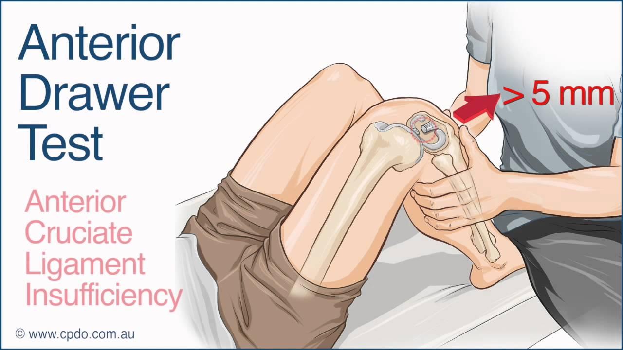 Anterior Cruciate Ligament (ACL) Injuries – Core EM