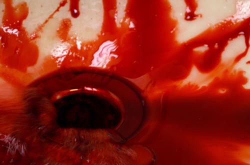 Blood In Sink X
