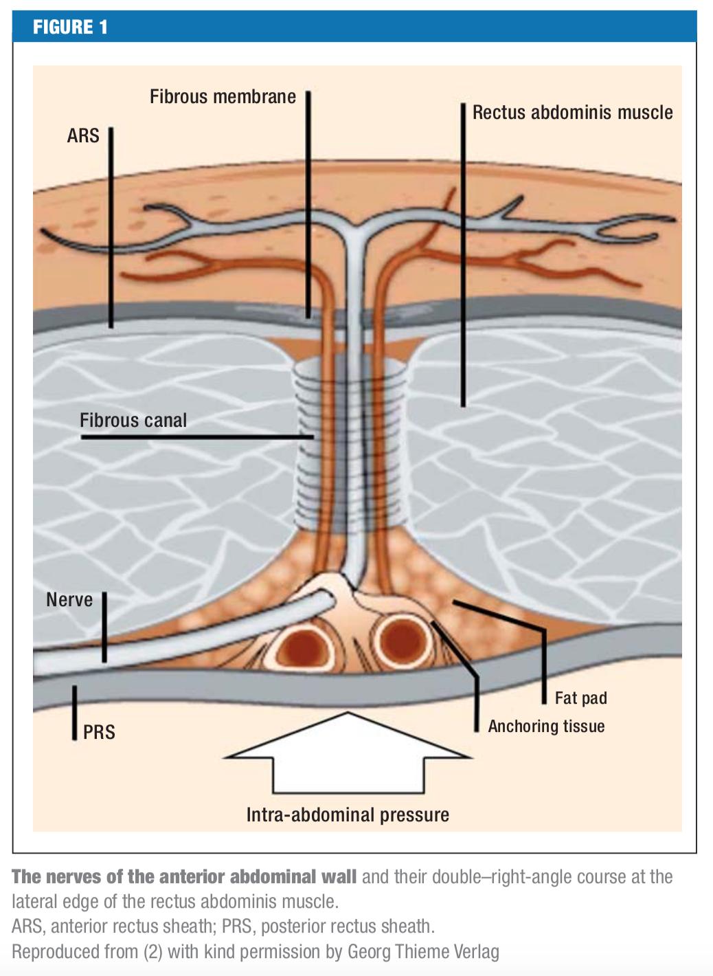 Abdominal Cutaneous Nerve Entrapment Syndrome (ACNES) – Core EM