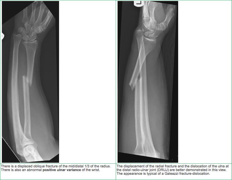 Forearm Fractures – Core EM