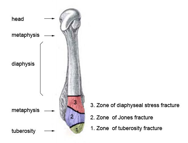 Image result for jones fracture zones