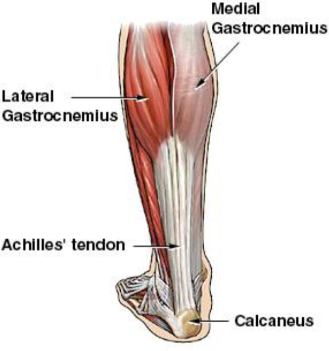 Achilles Tendon Rupture Core Em