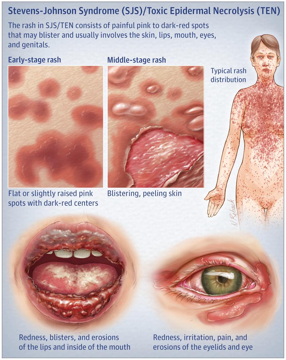 syndrome de stevens-johnson photos