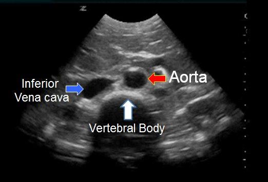 Ein Arzt kann einen Ultraschall anordnen, um ein Bauchaortenaneurysma zu diagnostizieren.
